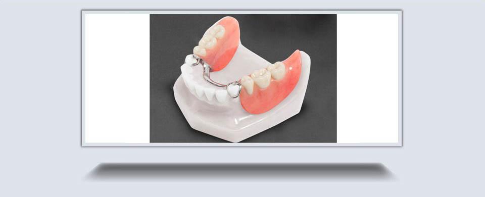 Partial Dentures1
