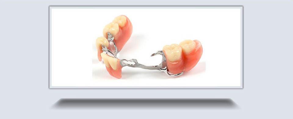 Partial Dentures2