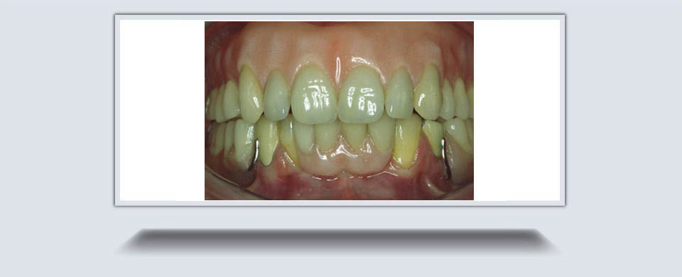 Partial Dentures4