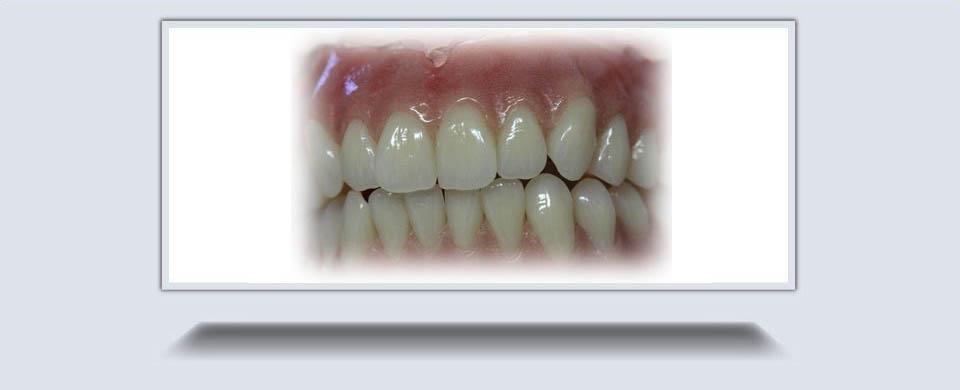Precision Dentures3
