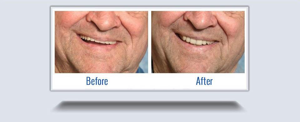 dentures1