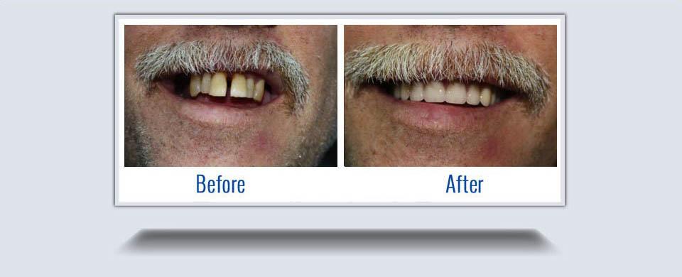dentures6