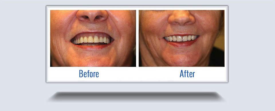 dentures7