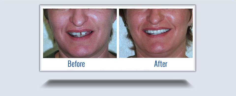 dentures8